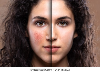 A beautiful young Caucasian woman is seen up-close before and after laser removal corrective surgery for rosacea. Successful procedure to restore confidence of pretty girl.