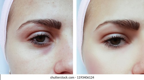 beautiful young girl acne, bruises under the eyes before and after procedures