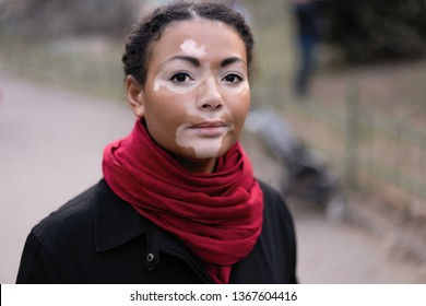 A beautiful young girl of African ethnicity with vitiligo standing on the warm spring city street dressed black coat close up portrait of woman with skin problems.