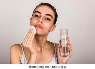beautiful young girl with problematic skin, acne face and cleaning routine concept