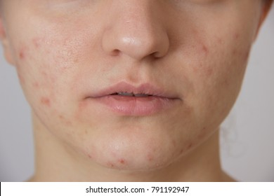 Beautiful young girl with red and white acne on her face on a white background