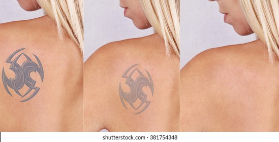 Beautiful young woman before and after laser tattoo removal treatment