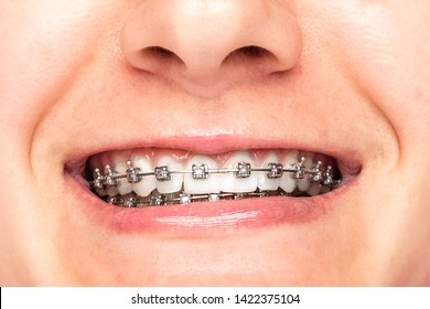 Beautiful young woman with braces, closeup. Bite correction