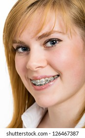 Beautiful young woman with brackets on teeth close up