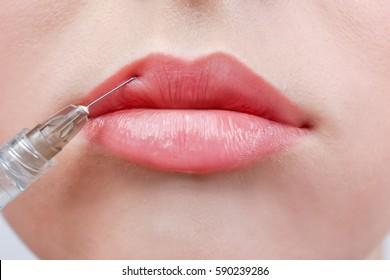 Beautiful young woman receiving filler injection in lips, closeup