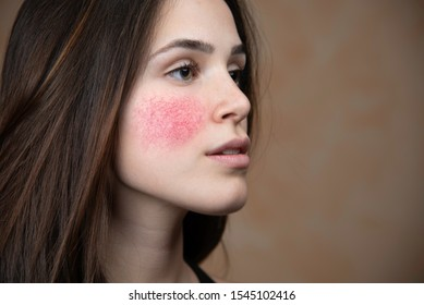 Beautiful young woman with rosacea