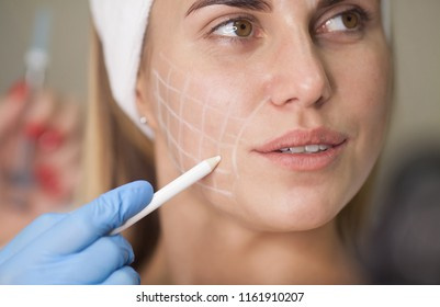 Beautiful young woman with squares grid on her face. Beautiful woman getting lifting injection in cheekbones. Injections of skin rejuvenation. Cosmetic procedures, injections, hyaluronic acid.