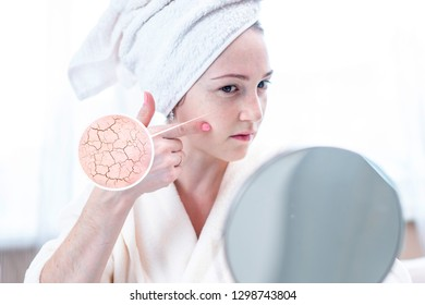 Beautiful young woman with a towel on her head looking at her dry skin with cracks and with first wrinkles. Circles increase the skin like a magnifying magnifier