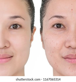 Beautiful young  woman with and without aging singes, wrinkles, blemishes, mole. Before and after laser treatment or plastic procedure, anti-age therapy.