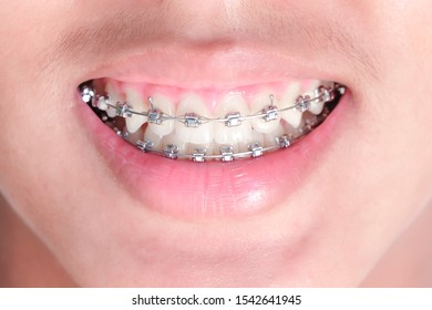 Beauty asian young man smile with orthodontic accessories. Beautiful macro shot of white teeth with braces. braces on teeth. Braces Smile. Orthodontic Treatment. concept: dental braces and Dentist.