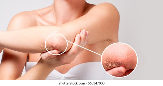 Beauty and Body care. Woman has dry skin on elbow.