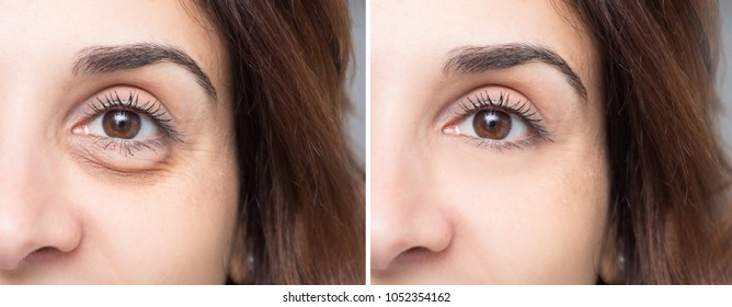 Beauty care applied to deflate the eyelid