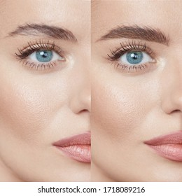 Beauty. Close Up Woman's Eyebrows Before And After Correction. Difference Between Female Face With And Without Permanent Makeup.