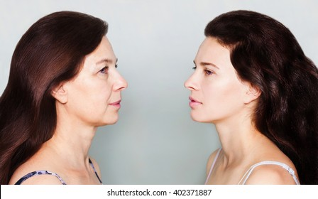 Beauty concept skin aging, anti-aging procedures, rejuvenation, lifting, tightening of facial skin, restoration of youthful skin anti-wrinkle. Before and after, mother and daughter - Shutterstock ID 402371887
