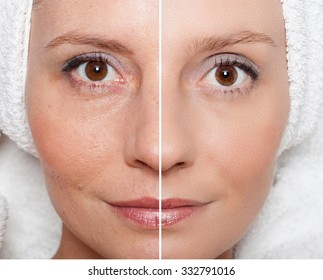 Beauty concept - skin care, anti-aging procedures, rejuvenation, lifting, tightening of facial skin - Shutterstock ID 332791016