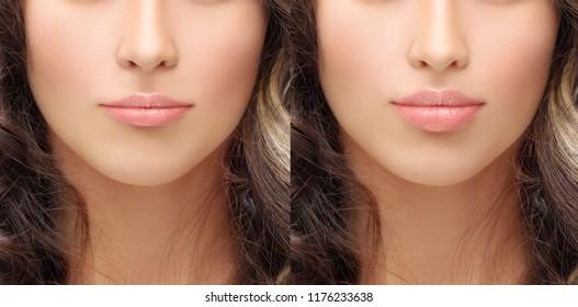 Lip Augmentation Images, Stock Photos & Vectors | Shutterstock