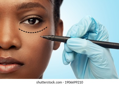 beauty, plastic surgery and people concept - close up of face of beautiful young african american woman with surgical mark under her eye and hand in glove with marker over blue background