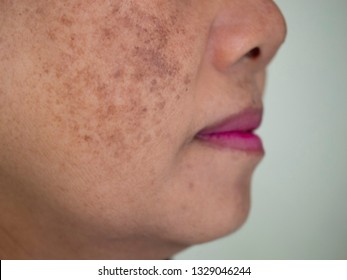 Beauty Skincare and health concept. The problem of dark spots on the face of woman that makes them lack confidence  .