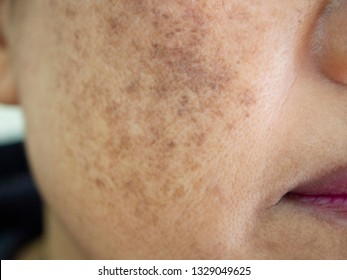 Beauty Skincare and health concept. The problem of dark spots melasma pigmentation on the face of asian woman that makes them lack confidence .