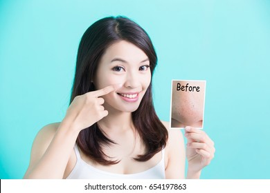beauty skincare woman take picture and point her nose
