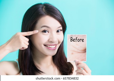 beauty skincare woman take picture and point her eye before and after