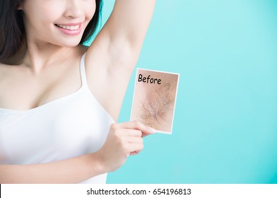 beauty woman take picture with under armpit problem before and after