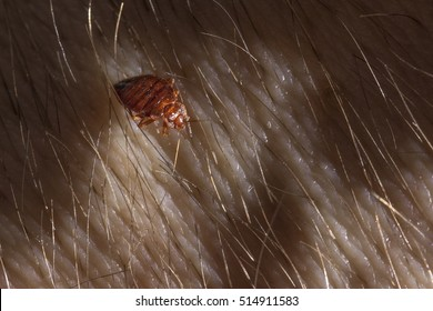 Bed bug Cimex lectularius on human body
