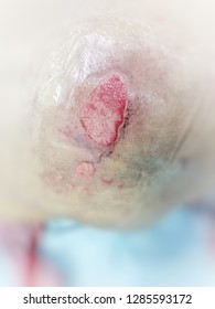 Bedsore, Pressure ulcer,  Wound,Wounds caused by illness.