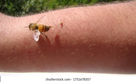 bee : apis mellifera. treatment by honey bee sting. closeup honey bee stinging a hand. close up bee worker. insects, insect, animal, wildlife, wild nature, forest, woods, garden beauty of pollination