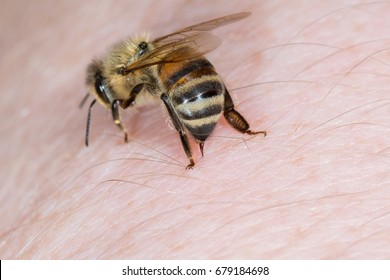 Bee stings in the hand of a person