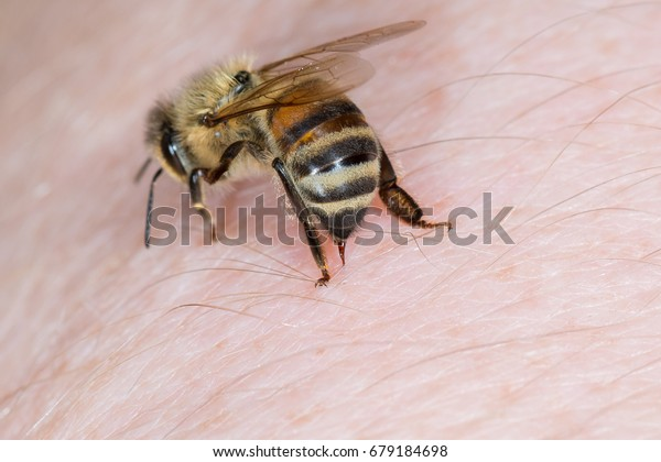 Bienenstiche in der Hand einer Person