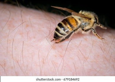 Bee stings with sting into human skin