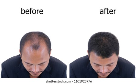 before and after bald head of a man .