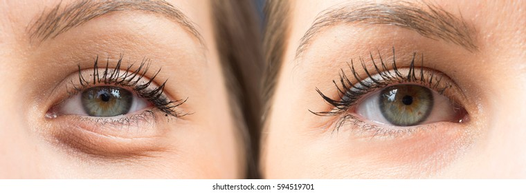 Before and after a blepharoplasty