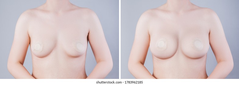 Before and after breast augmentation concept, woman with large silicone breasts after correction surgery on gray background