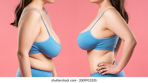 Before and after breast augmentation concept, woman with very large silicone breasts after correction surgery on pink background