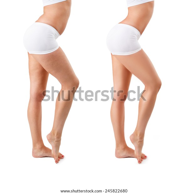 Before and after. Cellulite treatment program for women, weight loss. Figure of a young girl before and after, isolated, over white background with copy space. Concept of cellulite, spa treatment.