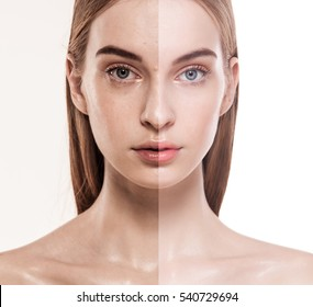 before after close up beauty skin shot