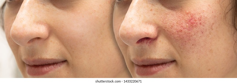 A before and after collage of a young Caucasian woman's face. Showing the results of laser surgery to remove the blemishes caused by rosacea. A common skin complaint in young adults.