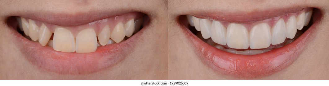 Before and after comparing of dental ceramic veneers treatment for space closing.