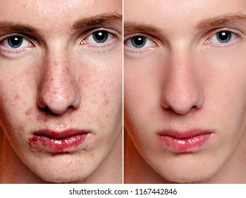 Before and after cosmetic operation. Young man portrait, studio background. Before and after cosmetic or plastic procedure, anti-age therapy, removal of acne, retouching. studio shot