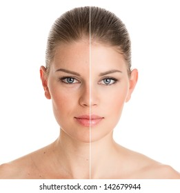 Before and after cosmetic operation. Young pretty woman portrait, isolated on a white background.