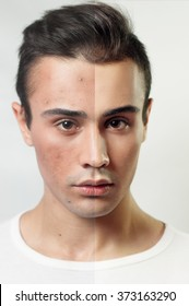 Before and after cosmetic operation. Young man portrait, isolated on a white background. Before and after cosmetic or plastic procedure, anti-age therapy, removal of acne, retouching. studio shot