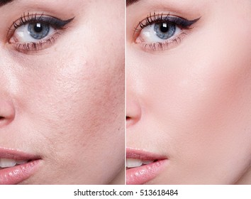 Before and after cosmetic operation. Young pretty woman portrait, isolated on a white background. Before and after cosmetic or plastic procedure, anti-age therapy