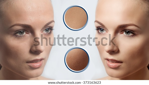 Before and after cosmetic operation. Young pretty woman portrait, isolated on a white background. Before and after cosmetic or plastic procedure, anti-age therapy. examples of perfect skin