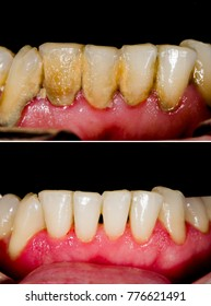 Before and after dental tartar removal - professional oral hygiene.