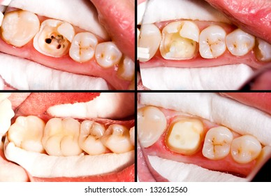 Before and after dental treatment, ceramic crown