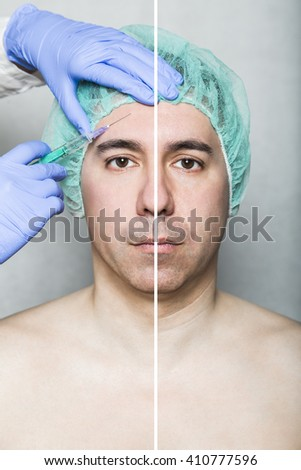 Before After Effect Hyaluronic Beauty Injection Stock Photo