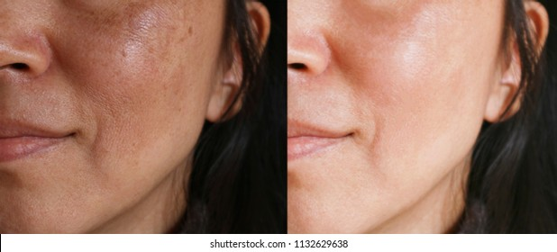 Before and after facial treatment concept. Face with melasma and brown spots and open pores.