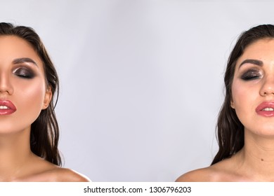 Before and after facial treatment concept. Face with melasma and brown spots and open pores